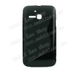 Telenor Smart Touch Mini (Alcatel One Touch SPop)EXKLUZÍV telefonvédő gumi  szilikon tok (FÉNYESMATT) - FEKETE - Telenor Smart Touch Mini