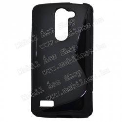 LG D337 L PrimeSzilikon védő tok  hátlap - FÉNYESMATT - FEKETE - LG L80+ L Bello (D331)