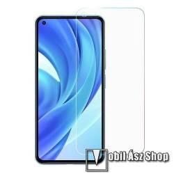 Képernyővédő fólia - Ultra Clear - 1db, törlőkendővel, A képernyő sík részét védi - Xiaomi Mi 11 Lite / Xiaomi Mi 11 Lite 5G